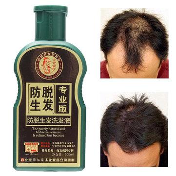 Естественный чистое травянистое усилие шампуня Essence Anti выпадение волос Толстое удаление алопеции Shedding